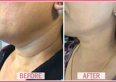 glow laser and skin care clinic before after 1