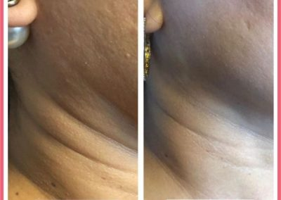 glow laser and skin care clinic before after 2