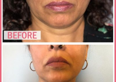 glow laser and skin care clinic before after 3