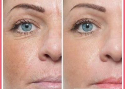 glow laser and skin care clinic before after 4